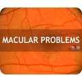 Macular Problems