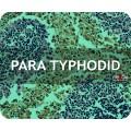 Para Typhoid